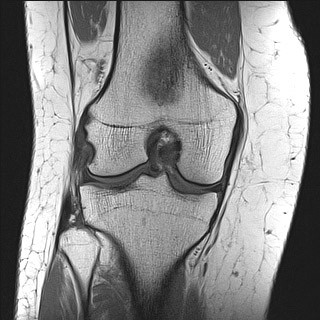 Slika 1) T1 SE sekvenca, koronarni presjek koljena