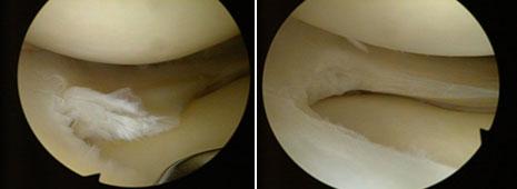 Sl. 1 Mala poprečna ruptura trupa vanjskog meniska liječena poštednom meniscektomijom.