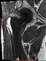 SEMAC sekvenca za reduciranje artefakata oko proteze (totalna endoproteza desnog kuka), koronarni presjek, moguća analiza stanja kosti oko proteze