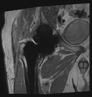 SEMAC sekvenca za reduciranje artefakata oko proteze (totalna endoproteza desnog kuka), koronarni presjek. Nešto izraženiji artefakti oko glave femoralne i acetabularne proteze. Odličan prikaz ovratnika i trupa endoproteze koji su oštro ograničeni.
