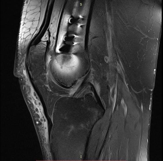 T1 sekvenca i SEMAC sekvenca, vidljiva osteosinteza femura intramedularnim čavlom. Sekvence reduciraju artefakte i omogućavaju analizu okolne kosti ali i hrskavice zglobnih ploha patele, femura i tibije