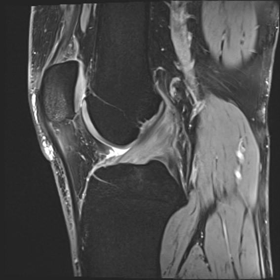 Slika 2) Me3d sekvenca, sagitalni prikaz koljena, zglobne hrskavice i prednjeg križnog ligamenta