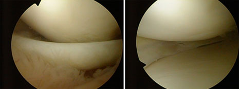 Sl. 2. Dugačka uzdužna ruptura medijalnog meniska s inkarecacijom (uklješten menisk). Učinjena subtotalna meniscektomija.