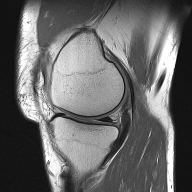 PD sekvenca, sagitalni presjek koljena, prikaz hrskavice zglobnih tijela i stražnjeg roga meniskusa