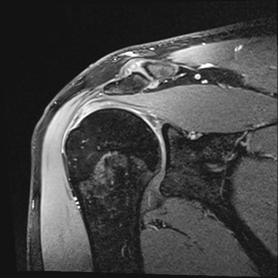 TRUFI 3D sekvenca, prikaz ramena u koronarnoj ravnini, primjer tendinopatije tetive mišića supraspinatusa