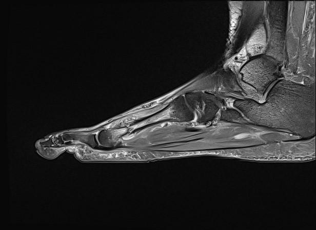 Dixon (water) sekvenca, sagitalni presjek, stres fraktura metatarzalne kosti