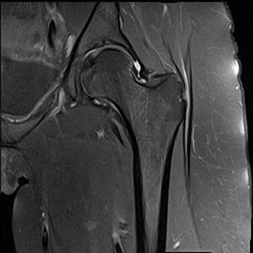 Magnetskom rezonancom potvrđena ruptura labruma
