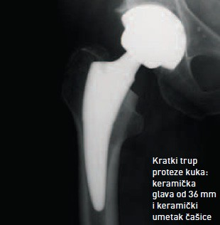 Achievements in hip joint replacement - Special hospital Akromion