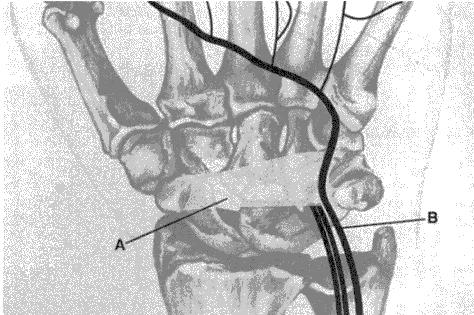 Slika 1. Prikaz Guyonovog kanala. A – Poprečni karpalni ligament. B – Ulnarni živac.
