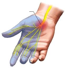 Slika 1. Prikaz medijanog živca (žuto),  mjesta prolaska i pritiska u karpalnom kanalu (crveni krug) i inervacijsko područje medijanog živca (plavo).