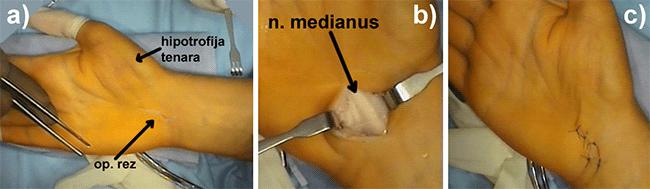 Slika 2. Operacijski zahvat dekompresije medijanog živca u karpalnom kanalu. a) zbog pritiska na živac uočava se slabost mišića na korjenu palca (strelica). Vidi se položaj operacijskog reza na dlanu b) ispod presiječenog zadebljanog fleksornog retinakula uočava se pristisnut medijani živac (strelica) c) prikaz zašivene operacijske rane
