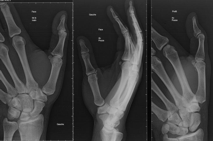 Slika 1. Prikaz avulzije (otrgnuća koštanog hvatišta) ulnarnog kolateralnog ligamenta palca