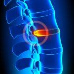 Operacije kralježnice – Hernija diska – dr. Mario Španić